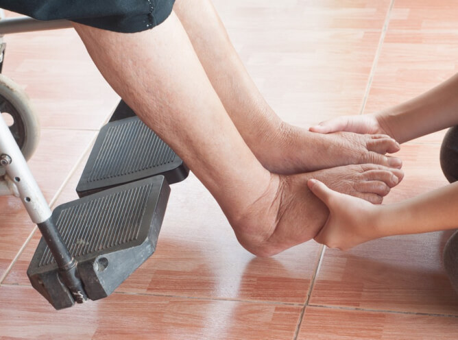 Foot Ulcers and How to Prevent Them
